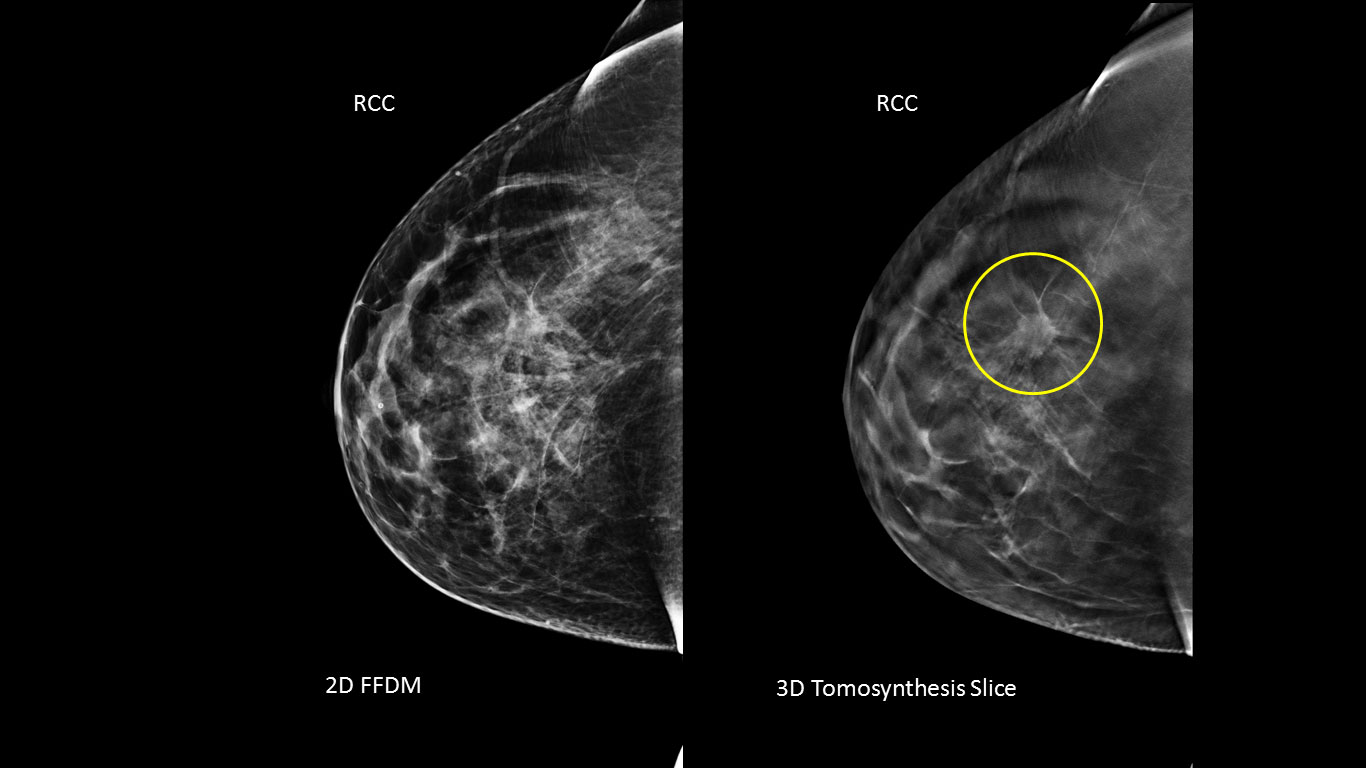 Breast tomosynthesis radiology